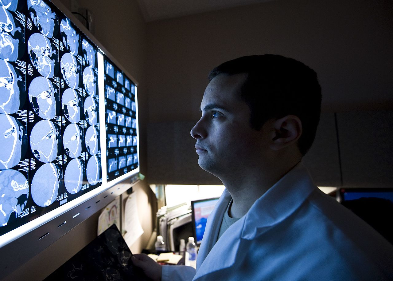Doctor facing the brain scan